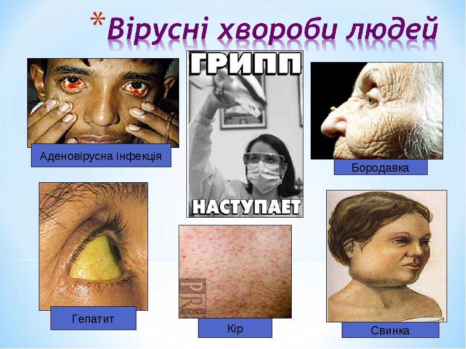 Кір Бородавка Гепатит Аденовірусна інфекція Свинка