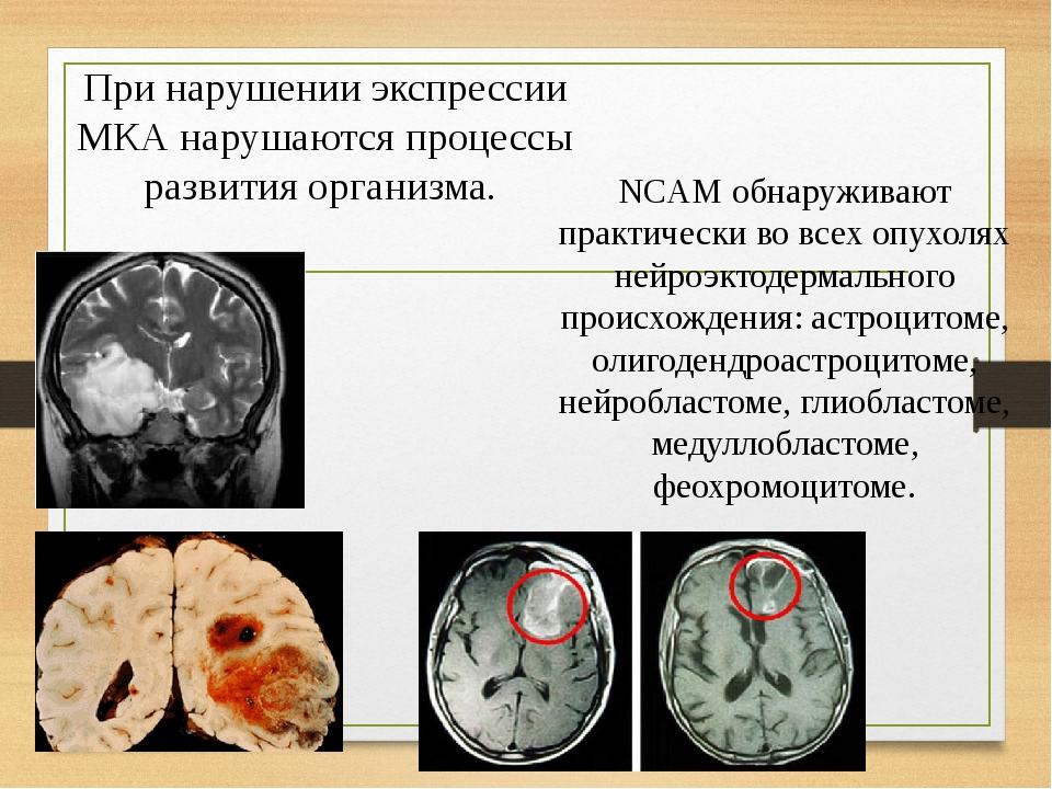 При нарушении экспрессии МКА нарушаются процессы развития организма. NCAM обнаруживают практически во всех опухолях нейроэктодермального происхожде...