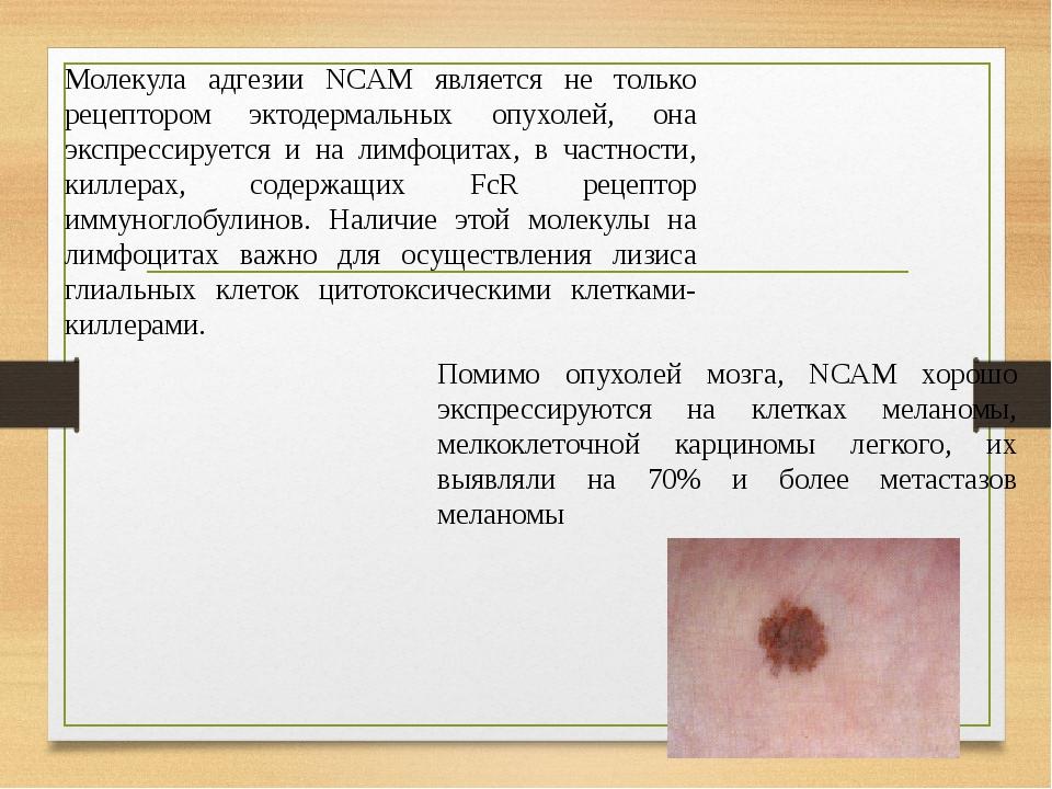 Молекула адгезии NCAM является не только рецептором эктодермальных опухолей, она экспрессируется и на лимфоцитах, в частности, киллерах, содержащих...