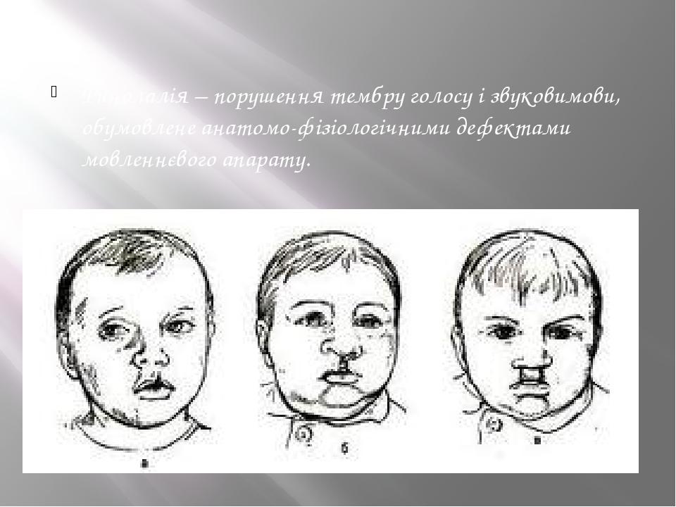 Ринолалія – порушення тембру голосу і звуковимови, обумовлене анатомо-фізіологічними дефектами мовленнєвого апарату.