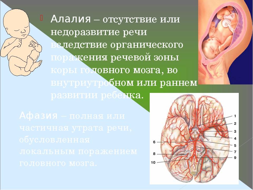 Алалия – отсутствие или недоразвитие речи вследствие органического поражения речевой зоны коры головного мозга, во внутриутробном или раннем развит...