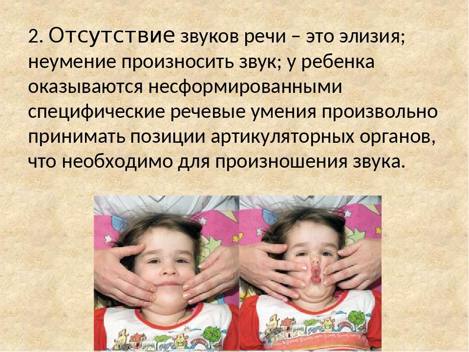 2. Отсутствие звуков речи – это элизия; неумение произносить звук; у ребенка оказываются несформированными специфические речевые умения произвольно...