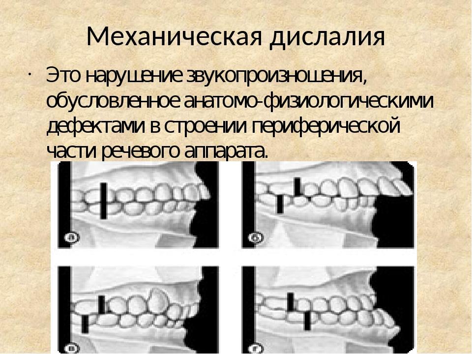 Механическая дислалия Это нарушение звукопроизношения, обусловленное анатомо-физиологическими дефектами в строении периферической части речевого ап...