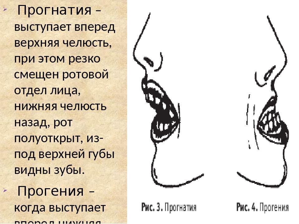 Прогнатия – выступает вперед верхняя челюсть, при этом резко смещен ротовой отдел лица, нижняя челюсть назад, рот полуоткрыт, из-под верхней губы в...