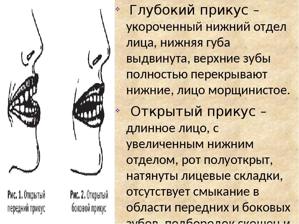 Глубокий прикус – укороченный нижний отдел лица, нижняя губа выдвинута, верхние зубы полностью перекрывают нижние, лицо морщинистое. Открытый прику...