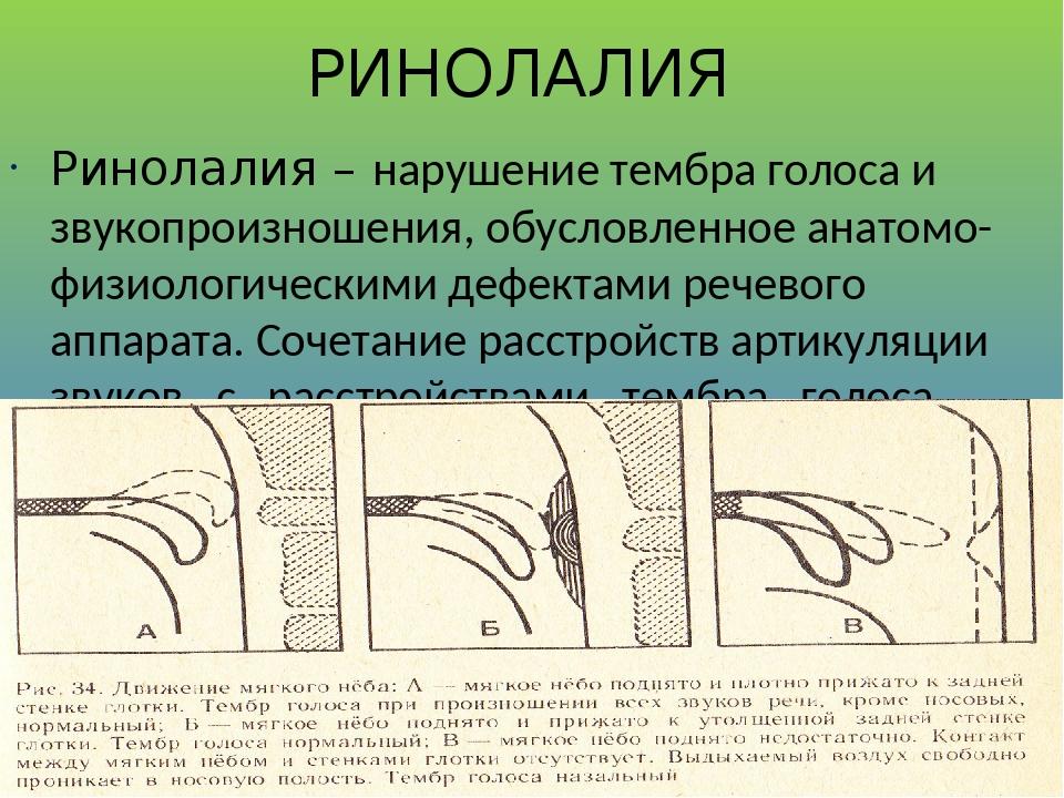 РИНОЛАЛИЯ Ринолалия – нарушение тембра голоса и звукопроизношения, обусловленное анатомо-физиологическими дефектами речевого аппарата. Сочетание ра...
