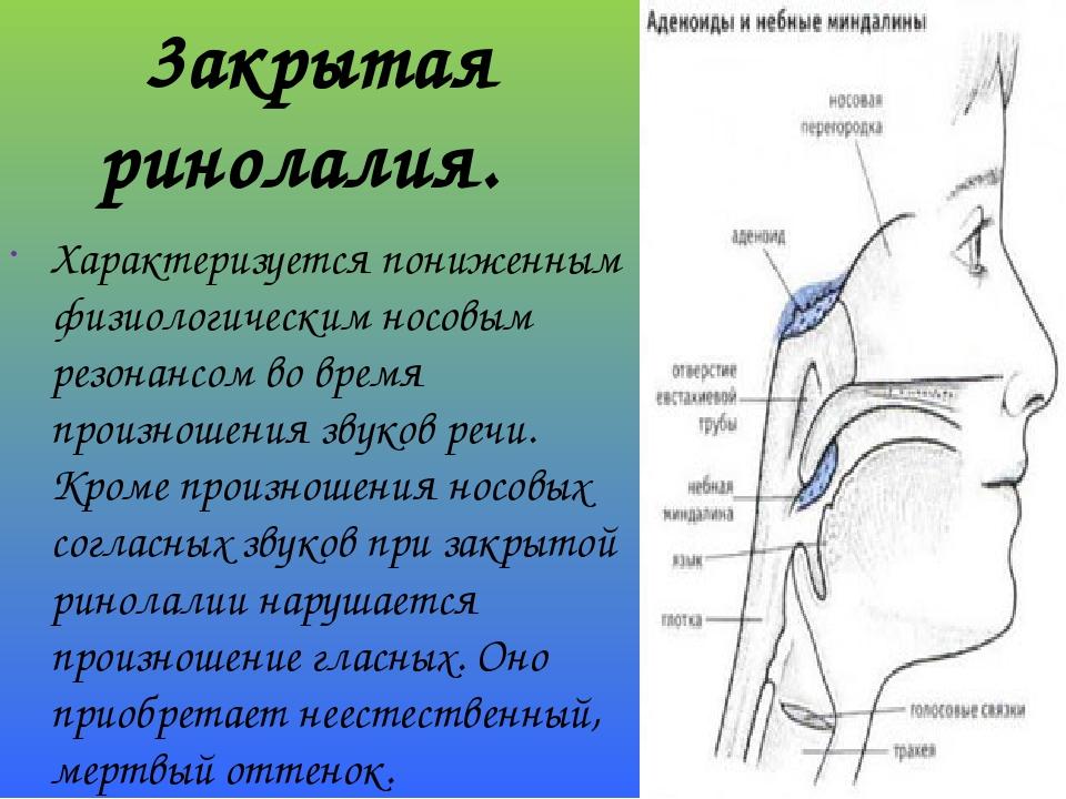 3акрытая ринолалия. Характеризуется пониженным физиологическим носовым резонансом во время произношения звуков речи. Кроме произношения носовых сог...