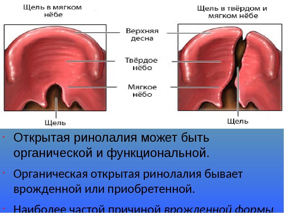 Открытая ринолалия может быть органической и функциональной. Органическая открытая ринолалия бывает врожденной или приобретенной. Наиболее частой п...