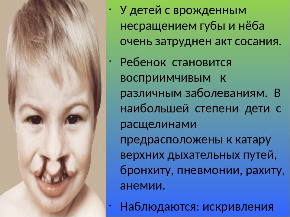 У детей с врожденным несращением губы и нёба очень затруднен акт сосания. Ребенок становится восприимчивым к различным заболеваниям. В наибольшей с...