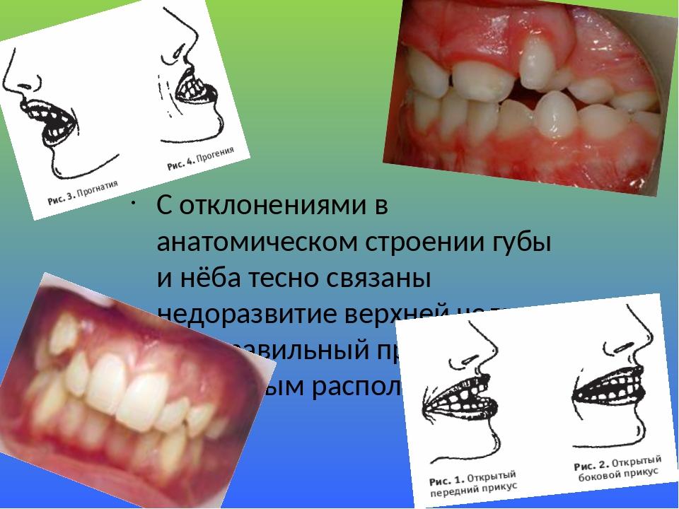 С отклонениями в анатомическом строении губы и нёба тесно связаны недоразвитие верхней челюсти и неправильный прикус с дефектным расположением зубов.