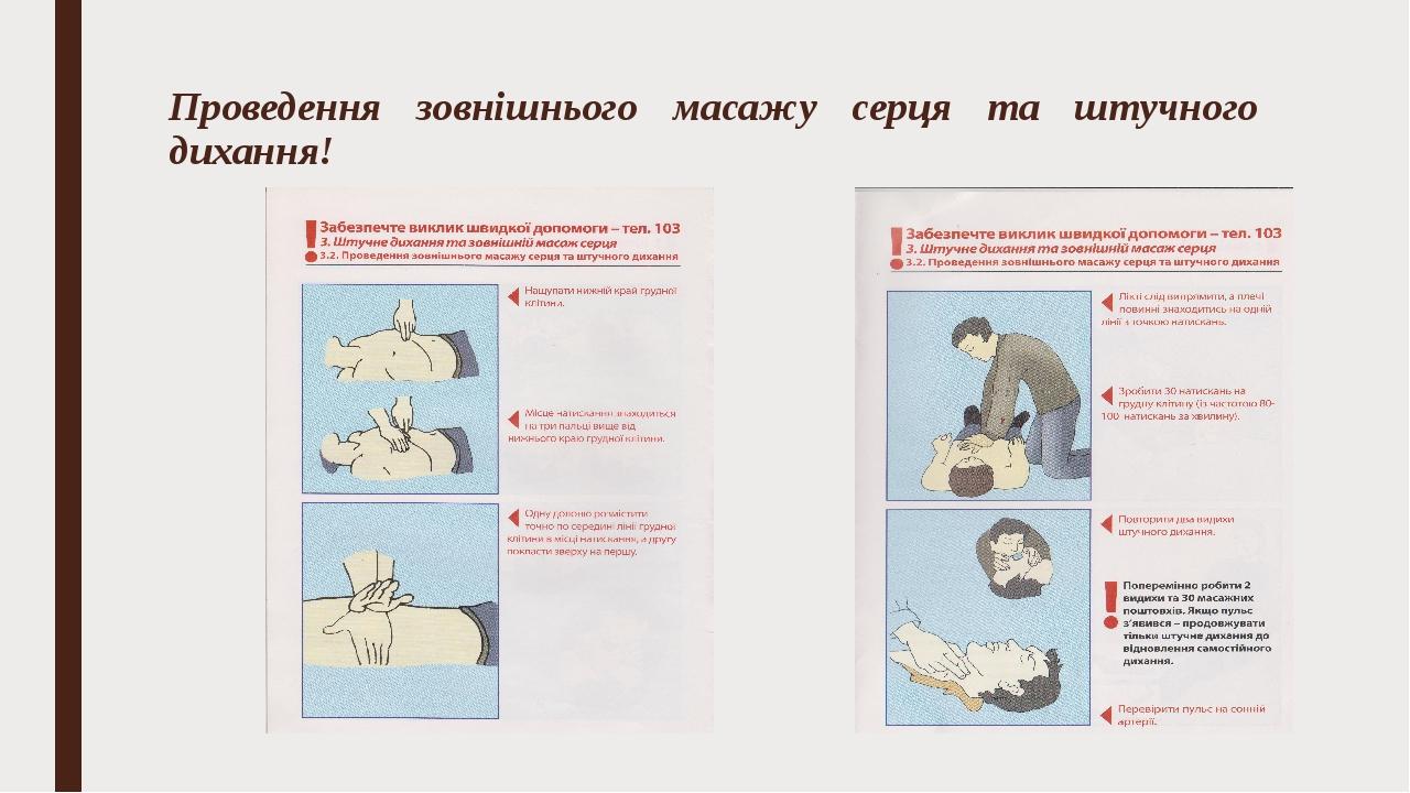 Проведення зовнішнього масажу серця та штучного дихання!