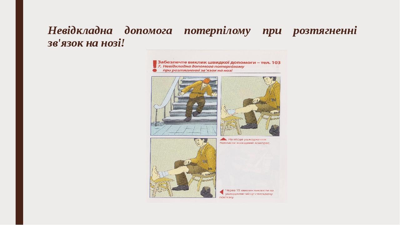 Невідкладна допомога потерпілому при розтягненні зв'язок на нозі!