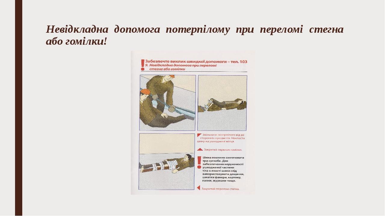 Невідкладна допомога потерпілому при переломі стегна або гомілки!