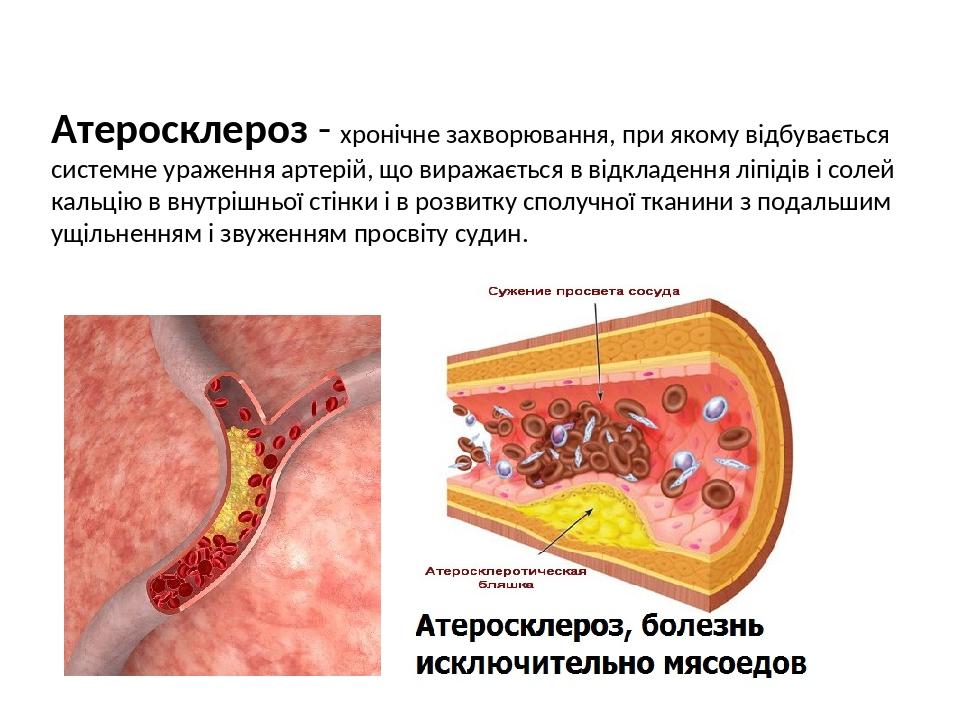 Атеросклероз - хронічне захворювання, при якому відбувається системне ураження артерій, що виражається в відкладення ліпідів і солей кальцію в внут...