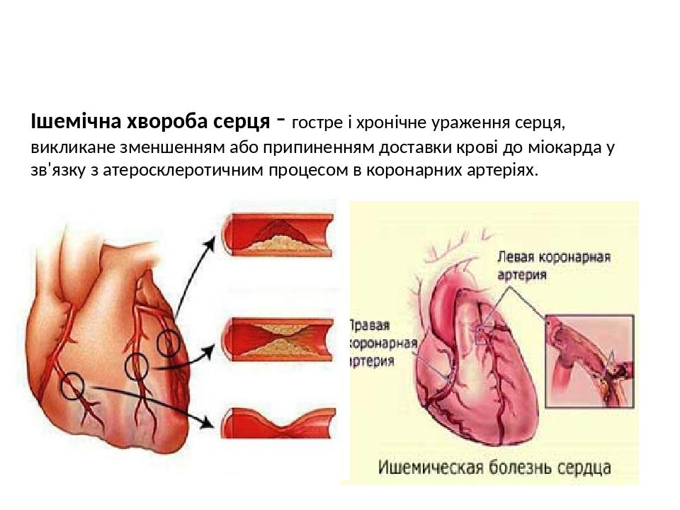Ішемічна хвороба серця - гостре і хронічне ураження серця, викликане зменшенням або припиненням доставки крові до міокарда у зв'язку з атеросклерот...