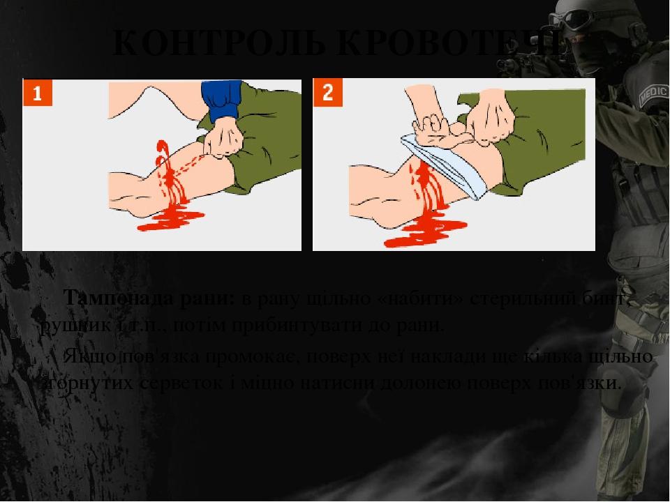 КОНТРОЛЬ КРОВОТЕЧІ Тампонада рани: в рану щільно «набити» стерильний бинт, рушник і т.п., потім прибинтувати до рани. Якщо пов'язка промокає, повер...