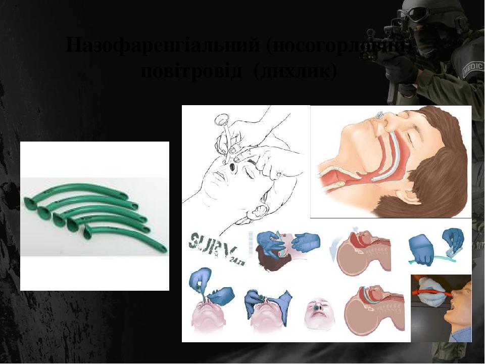 Назофаренгіальний (носогорловий) повітровід (дихлик)