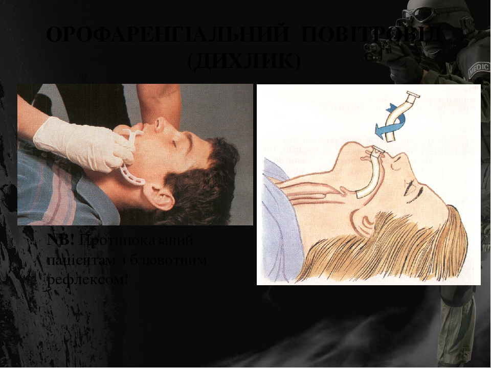ОРОФАРЕНГІАЛЬНИЙ ПОВІТРОВІД (ДИХЛИК) NB! Протипоказаний пацієнтам з блювотним рефлексом!
