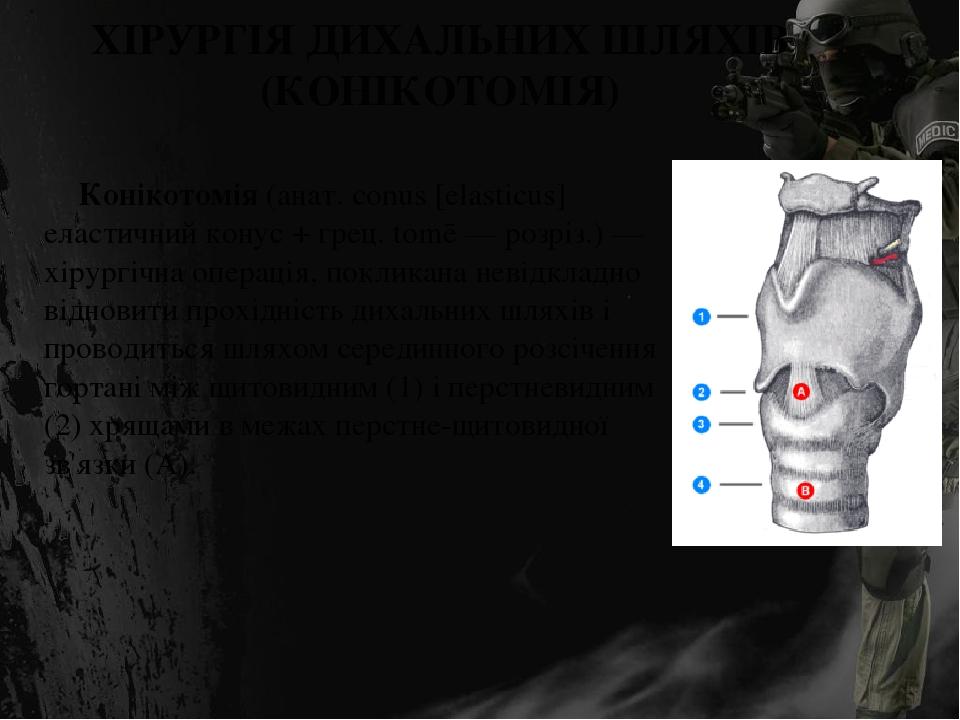 ХІРУРГІЯ ДИХАЛЬНИХ ШЛЯХІВ (КОНІКОТОМІЯ) Конікотомія (анат. conus [elasticus] еластичний конус + грец. tomē — розріз.) — хірургічна операція, поклик...
