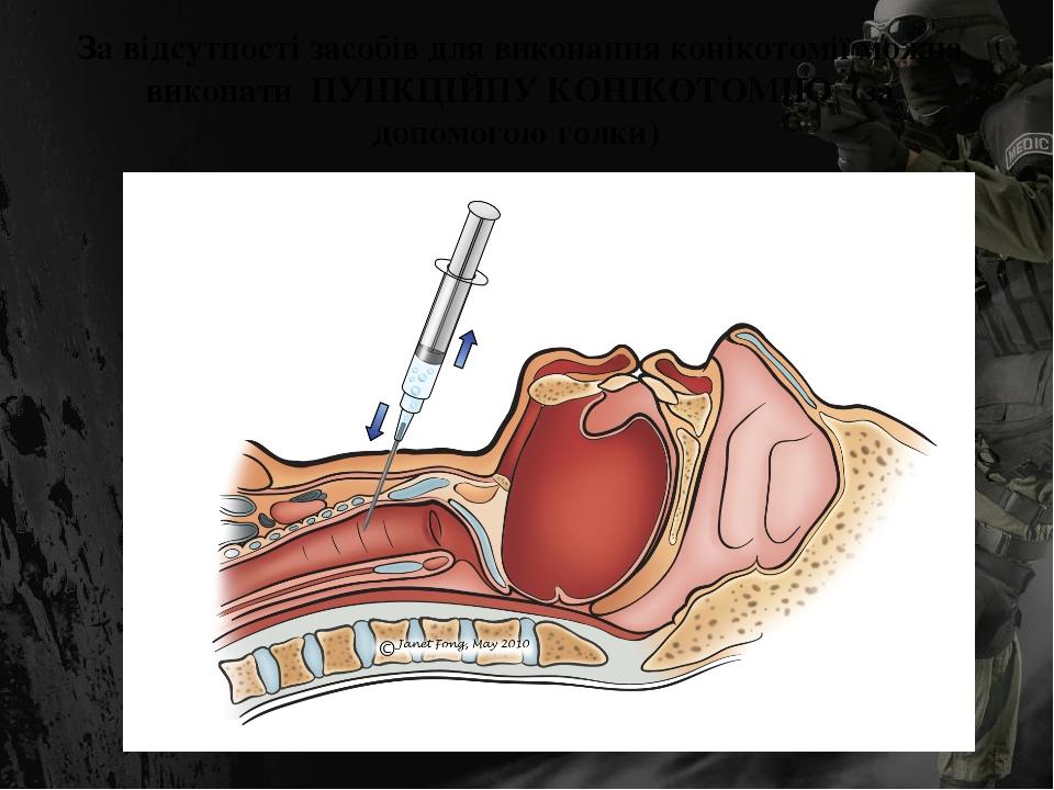 За відсутності засобів для виконання конікотомії можна виконати ПУНКЦІЙНУ КОНІКОТОМІЮ (за допомогою голки)