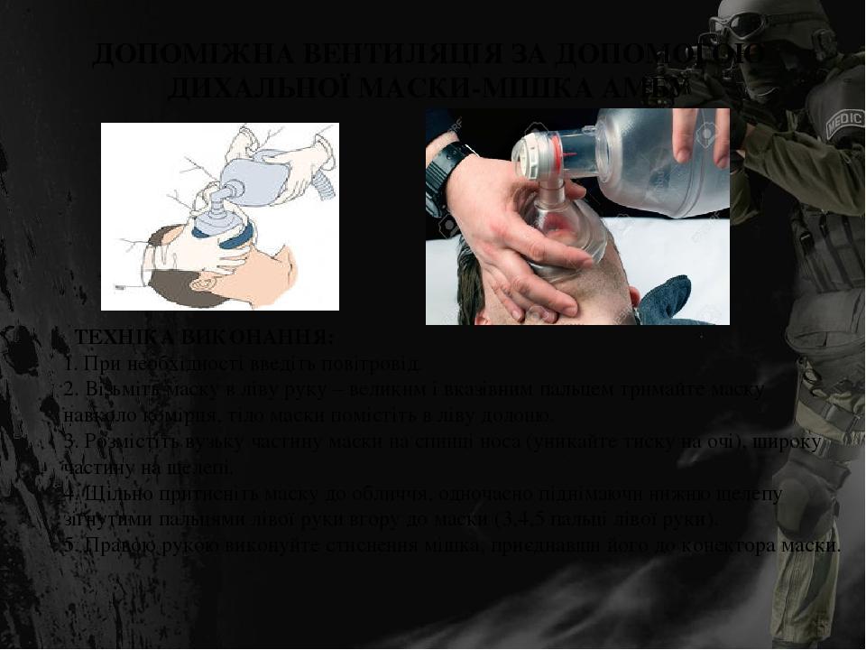 ДОПОМІЖНА ВЕНТИЛЯЦІЯ ЗА ДОПОМОГОЮ ДИХАЛЬНОЇ МАСКИ-МІШКА АМБУ ТЕХНІКА ВИКОНАННЯ: 1. При необхідності введіть повітровід. 2. Візьміть маску в ліву ру...