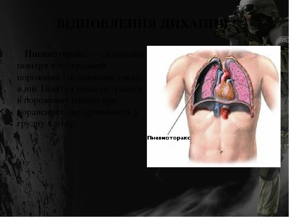 ВІДНОВЛЕННЯ ДИХАННЯ Пневмоторакс — скупчення повітря в плевральній порожнині і підвищення тиску в ній. Повітря може потрапити в порожнину плеври пр...