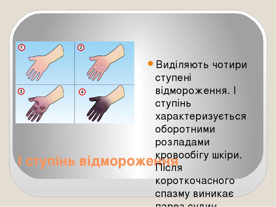 І ступінь відмороження Виділяють чотири ступені відмороження. І ступінь характеризується оборотними розладами кровообігу шкіри. Після короткочасног...
