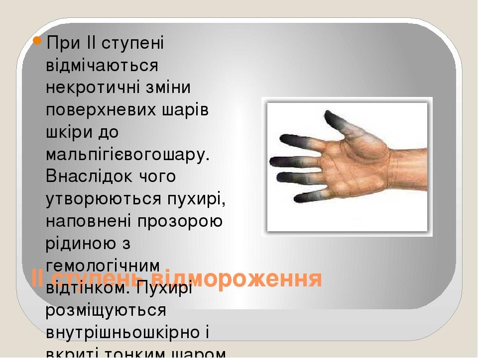 II ступень відмороження При II ступені відмічаються некротичні зміни поверхневих шарів шкіри до мальпігієвогошару. Внаслідок чого утворюються пухир...