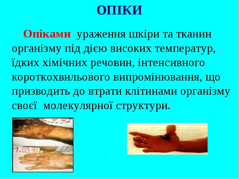 Опіками ураження шкіри та тканин організму під дією високих температур, їдких хімічних речовин, інтенсивного короткохвильового випромінювання, що п...