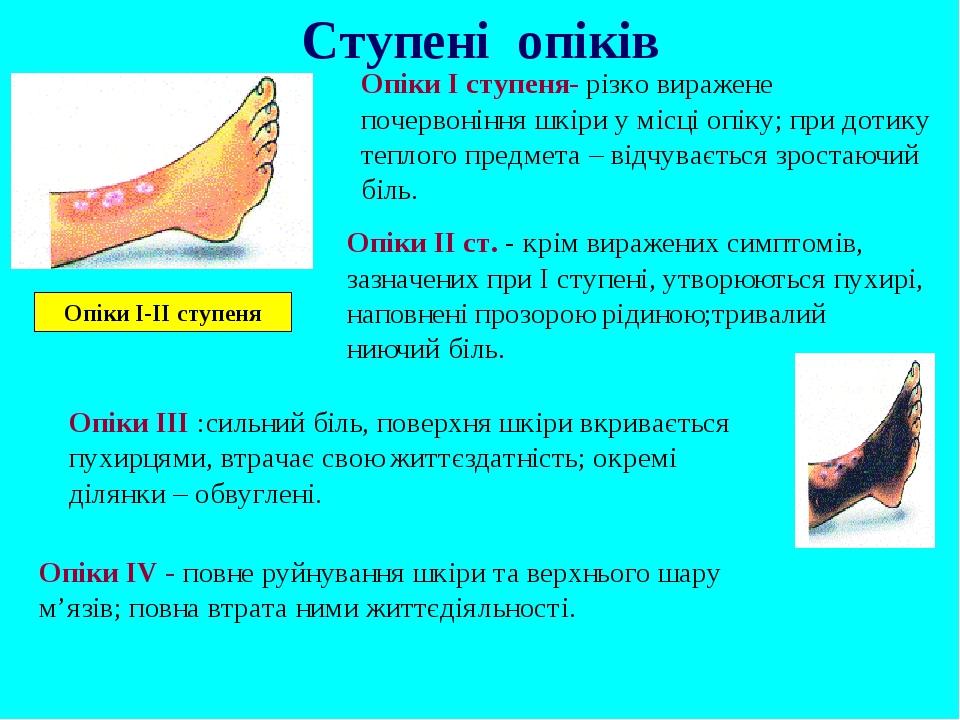 Опіки І ступеня- різко виражене почервоніння шкіри у місці опіку; при дотику теплого предмета – відчувається зростаючий біль. Опіки II ст. - крім в...
