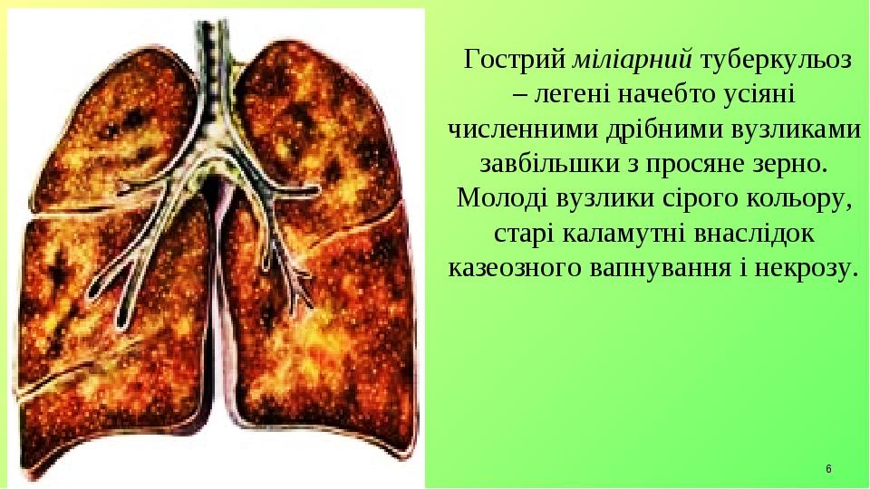 * Гострий міліарний туберкульоз – легені начебто усіяні численними дрібними вузликами завбільшки з просяне зерно. Молоді вузлики сірого кольору, ст...