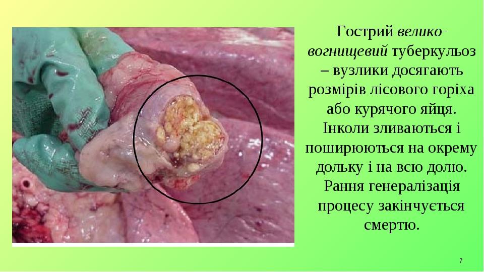 * Гострий велико-вогнищевий туберкульоз – вузлики досягають розмірів лісового горіха або курячого яйця. Інколи зливаються і поширюються на окрему д...