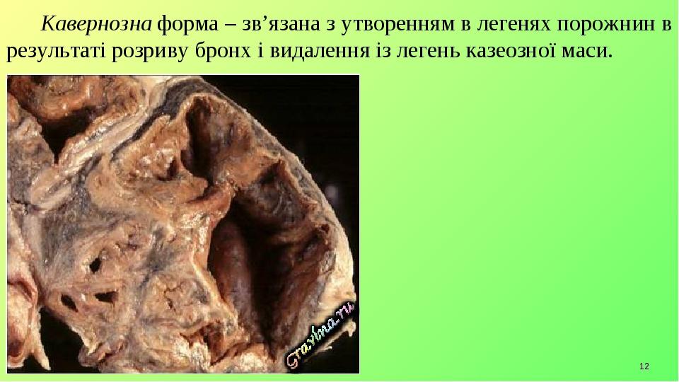 * Кавернозна форма – зв'язана з утворенням в легенях порожнин в результаті розриву бронх і видалення із легень казеозної маси.