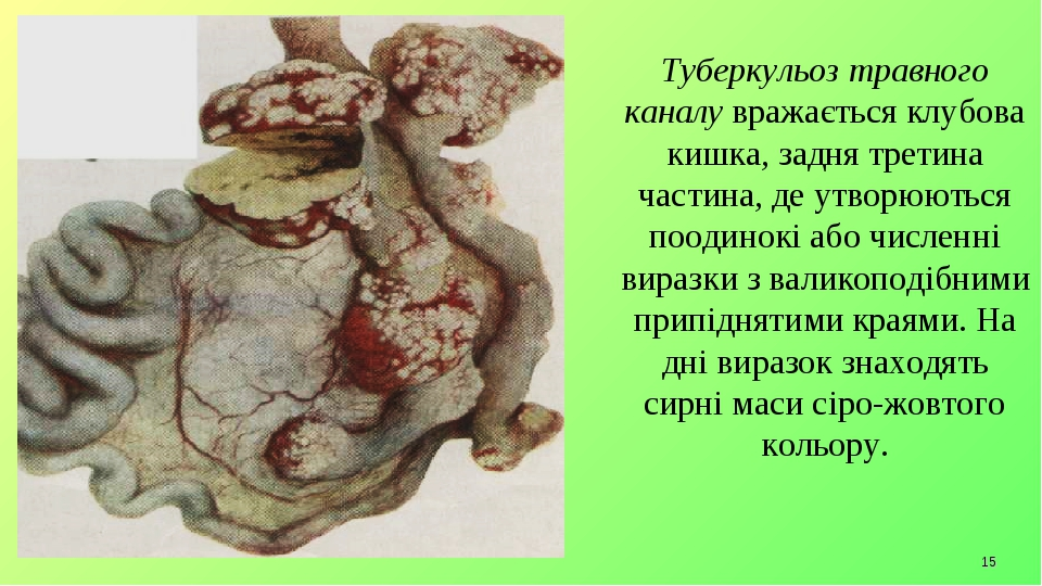 * Туберкульоз травного каналу вражається клубова кишка, задня третина частина, де утворюються поодинокі або численні виразки з валикоподібними прип...